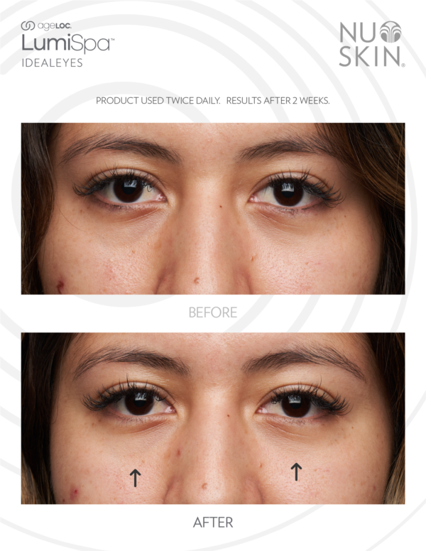 Nu Skin Ageloc Lumispa accent Kit ideal eyes reviews before and after results