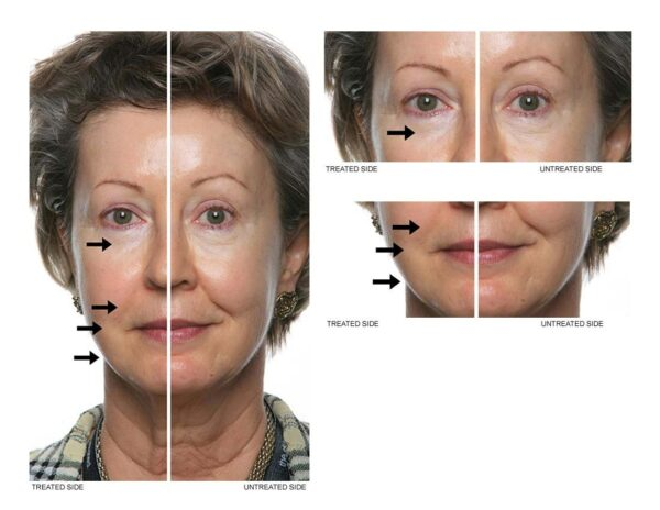 Nu skin facial spa reviews before and after results