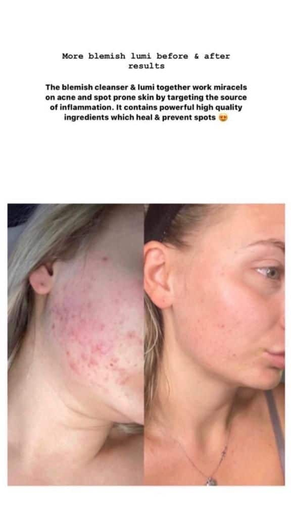 Nuskin Ageloc Lumispa Essential Kit Before and After pics
