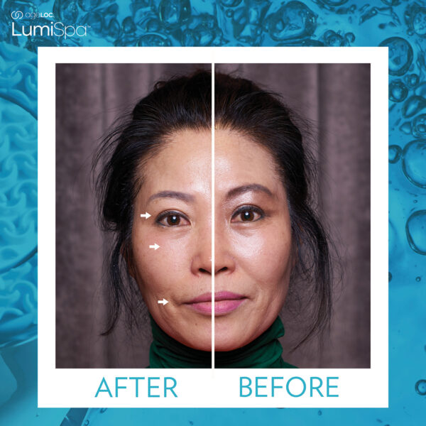 Nu Skin Ageloc Lumispa Kit reviews before and after results