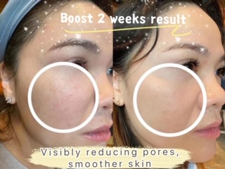 Nu Skin Ageloc Boost reviews before and after results