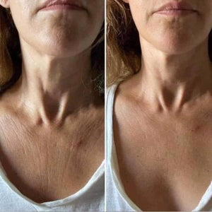 Nu skin ageloc Dermatic Effect body firming lotion reviews before and after pics