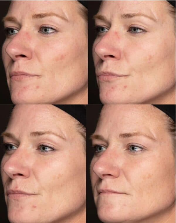 Nutricentials Bioadaptive Skin Care™ Brighter Day Exfoliant Scrub before and after